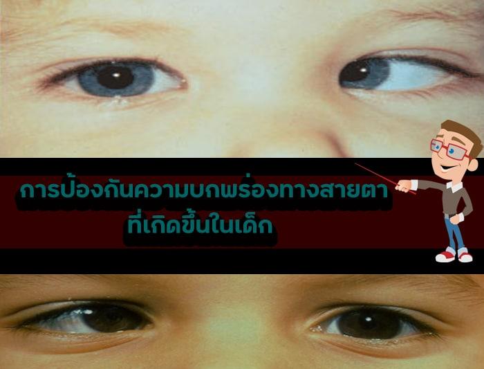 ตาเหล่